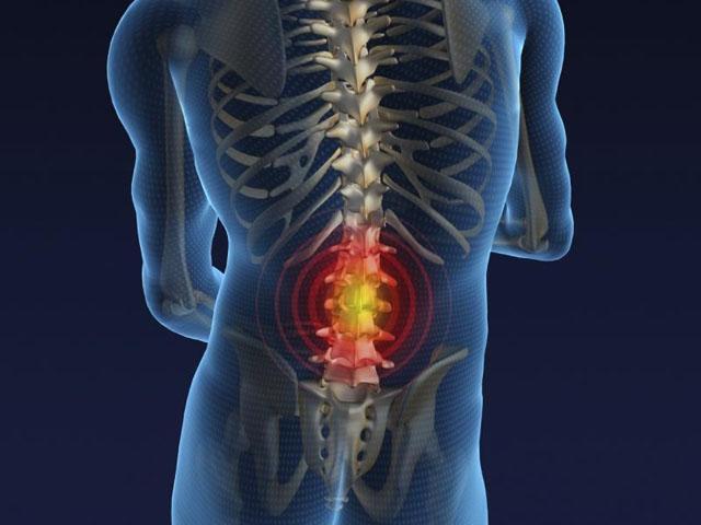 Las hernias discales y la quiropráctica