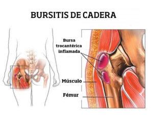Bursitis-de-cadera-tantae-quiropractica.jpg