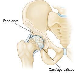 osteoartritis-dolor-cadera-tantae-quiropractica