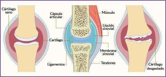 desgaste-cartilago-osteoartritis-tantae-quiropractica.jpg
