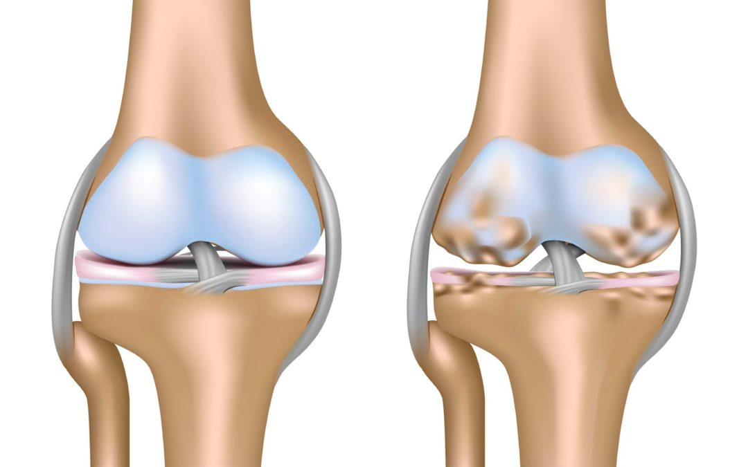 Causas y consecuencias de la artrosis